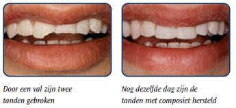 Facing techniek tandarts, Facing porselijn